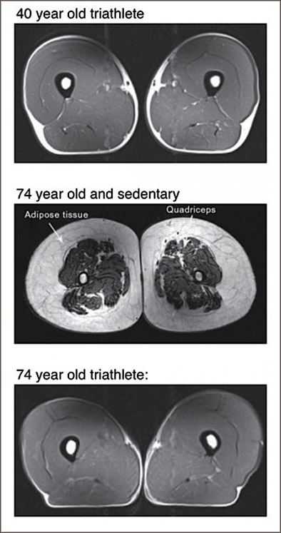 MRI's of triathlete's muscles as they age